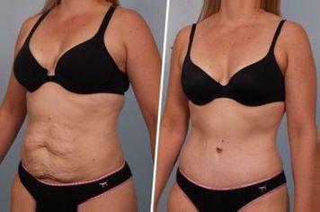 операция по удалению кожи после похудения 65